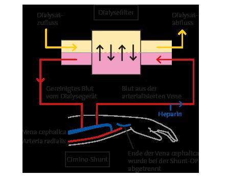 Hämodialyse