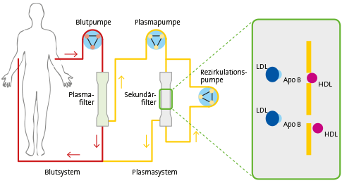 Lipidaphereseverfahren
