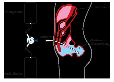 Peritonealdialyse (Bauchfelldialyse)